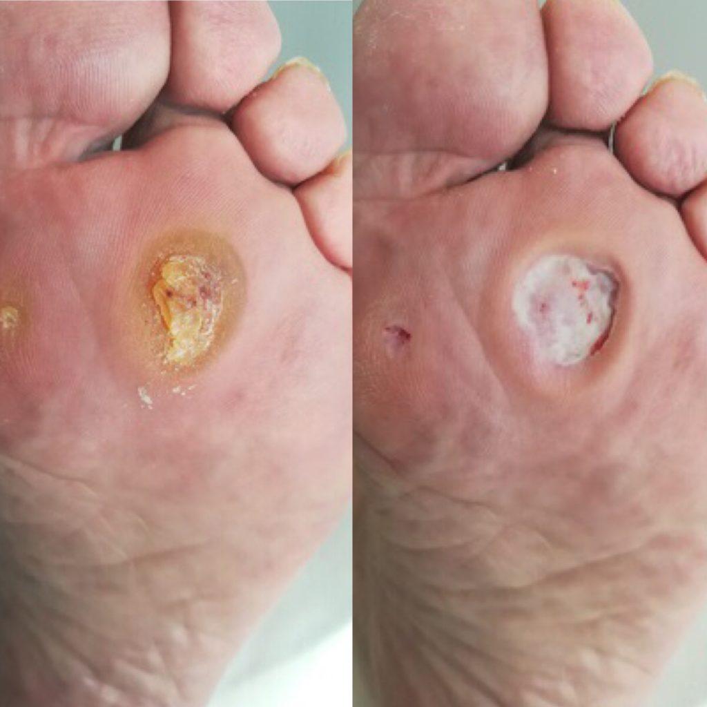 stopa cukrzycowa md